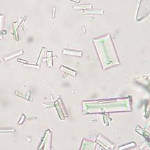 Example of Microscopic Urine Sediment exam results