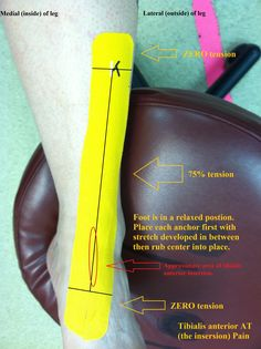1000+ images about Physical therapy on Pinterest ...