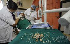 インド・ムンバイ(Mumbai)の病院で行われた少年の複雑性歯牙腫(しがしゅ)手術で、摘出された歯の組織(2014年7月22日撮影)。(c)AFP ▼24Jul2014AFP 17歳少年から計232本の「歯」を摘出、インド http://www.afpbb.com/articles/-/3021387 #Odontoma