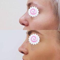 """Результат операции """"Ринопластика"""", проведенной доктором Кузиным Д.А.  Фото сразу после снятия гипса."""