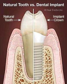 32 Best Root Canal images | Dental caps, Dental care, Root