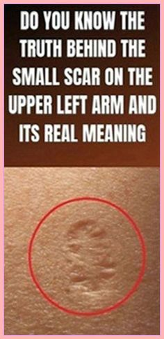This Is The Truth Behind The Scar Everyone Has On The Upper Left Arm ! This Is The Truth Behind The Scar Everyone Has On The Upper Left Arm ! The post This Is The Truth Behind The Scar Everyone Has On The Upper Left Arm ! appeared first on Design Ideas. Medicine Book, Herbal Medicine, Natural Medicine, Know The Truth, Yoga Quotes, Healthy Tips, Healthy Food, Healthy Women, Stay Healthy