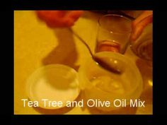 How to get rid of Dandruff - Natural Homemade Remedy - Tea Tree and Olive Oil Mix