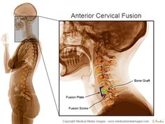 Color X-Ray Medical Image showing a Cervical Fusion Surgery (ACDF). Ideal for Medical Websites and Publications. http://www.medicalmediaimages.com/interactive-color-x-ray-anterior-cervical-spine-fusion/845