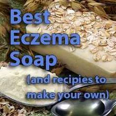 """My boyfriend (aka live in husband) has a severe case of eczema and has always said """"Can't do anything for it. Nothing works, no matter what I've..."""