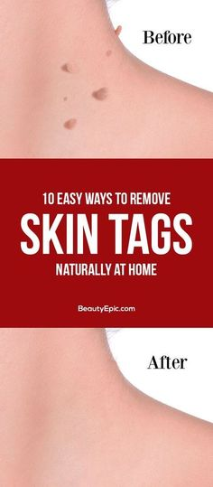 Home remedies to remove skin tags naturally