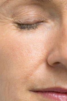 Nicht gefährlich, aber unschön: große Poren. Die richtige Reinigung für eine feinporige Haut ist das A und O. Dennoch muss man aufpassen: Zuviel Reinigung schadet eher der Haut