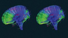 """Your Brain Has A """"Delete"""" Button—Here's How To Use It This is the fascinating way that your brain makes space to build new and stronger connections so you can learn more. https://www.fastcompany.com/3059634/your-most-productive-self/your-brain-has-a-delete-button-heres-how-to-use-it"""