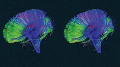 Bouton 'supprimer': C'est la manière fascinante par laquelle notre cerveau fait de la place afin que nous puissions y construire de nouvelles connexions.