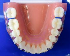 Spacers Orthodontics for Braces