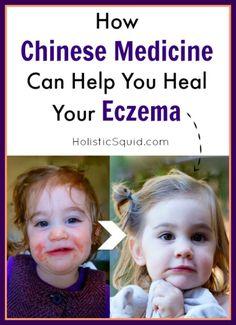 How Chinese Medicine Can Help You Heal  Eczema - Holistic Squid