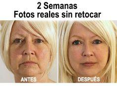 EXCLUSIVA: Un madre engaña a los médicos del Botox con su truco secreto para quitar las arrugas – Sorprendentes resultados tras 14 días