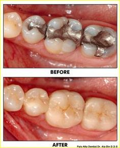 Dental inlays and onlays are a more conservative way to repair tooth decay without fillings or crowns. Learn more about this procedure, its benefits and costs. Dental Fillings, Smile Design, Best Dentist, Dental Services, Cosmetic Dentistry, Dental Health, Cavities, Tooth, Health