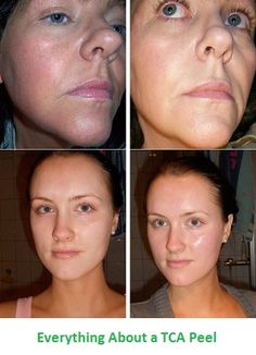 Trichchloroacetic acid peels or TCA peels are very effective in reducing and or removing acne and acne scars, wrinkles and fine lines, age spots, evening out skin tone and hyper-pigmentation and treating numerous skin conditions. This type of chemical peel is become more and more popular in UK and Ireland right now. And for a good reason. TCA peels are much more potent and effective, while being safe at the same time.