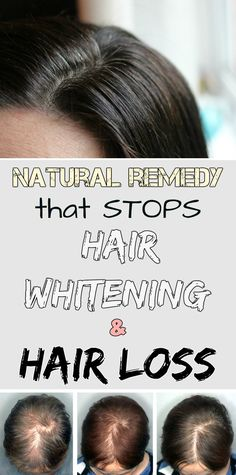 Natural remedy that stops hair whitening and hair loss - RealBeautyTips.net