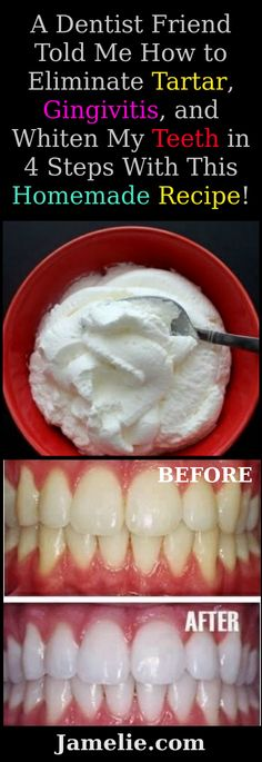 A Dentist Friend Told Me How to Eliminate Tartar, Gingivitis, and Whiten My Teeth in 4 Steps With This Homemade Recipe – Jamelie