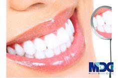 اگرچه بوسیلهبلیچینگ دندان همه تغییر رنگ ها قابل بازگشت و بهبود هستند اما ممکن است افرادی که دارای دندان های حساس هستند و یا دندان آن ها دچار مشکل عصب و یا پالپ باشد ایجاد ناراحتی کند.چهار روش برای بلیچینگ .جود دارد که در ادامه به آنها می پردازیم اما قبل از آن توضیح مختصری در مورد پالپ دندانی می دهیم. Whitening Skin Care, Best Teeth Whitening, Whitening Kit, Tartar Removal, Tooth Enamel, How To Prevent Cavities, Smile Design, Family Dentistry, Best Dentist