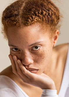 Young Black Man With Freckles And Natural Red Hair