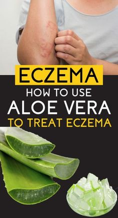 Why and how aloe vera is being claimed as one of the best solutions to eczema and other skin related problems as well. Let's understand some of the benefits of aloe vera in eczema Home Remedies For Eczema, Natural Health Remedies, Herbal Remedies, Natural Remedy For Eczema, Natural Cures, Natural Skin, Cold Remedies, Aloe Vera For Eczema, Medicinal Plants