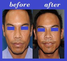 Bangkok Aesthetic Surgery Center: Buccal Fat Injection Thailand
