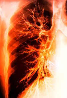 The airways of a lung.
