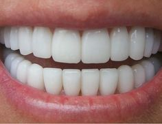 Bright and white teeth!!!! Everyone wants them, and they're not difficult to obtain, there are many different home remedies to get you there including ( my favorite): 1.) put a little toothpaste into a cup and combine that with 1 teaspoon baking soda, 1 teaspoon hydrogen peroxide, and 1/2 a teaspoon water, just mix and brush for 2 minuites!! And we'll la!! Repeat until you've reached the white you want, then limit the treatment to avoid sensitive choppers!!(: enjoy!