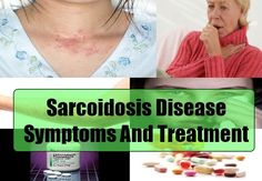 Common Symptoms Of Sarcoidosis Disease - Sarcoidosis Disease Treatments | Health Care A to Z
