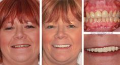 Medical Information, Cosmetic Dentistry, Dental Health, Names, Tours, Smile, Learning, Blog, Oral Health