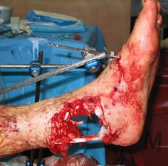 horrible accident injuries - Yahoo Image Search Results | ⇆ 750| x(ds)| https://www.pinterest.com/pin/309129961902389345/
