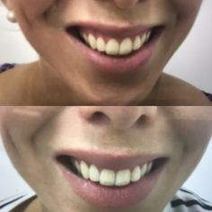 Reduced gummy smile using muscle relaxant injections. Performed by Dr. Rahma Targett at Advanced Cosmetic Medicine