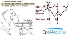 assessment of jugular venous pressure