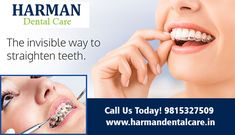 We use the easiest ways to straighten teeth without braces. It uses a series of clear plastic aligners to slowly reposition your teeth. To book your appointment call us: 9815327509 Best Dentist, Dentist In, Straighten Teeth Without Braces, Teeth Straightening, Dental Cosmetics, Dental Problems, Dental Care, Straightener, Plastic