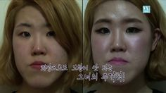 Orang Utan-like Woman, Korea Plastic Surgery STORY 1
