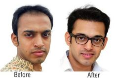 Areeva Cosmetic Surgery is a leading Hair Transplant clinic & Skin Specialist in Vashi, Navi Mumbai. We offer Weight loss, Liposuction, Facial Surgery, etc. http://www.areevacosmeticsurgery.com/