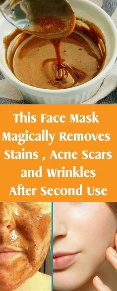 This Face Mask Magically Removes Stains , Acne Scars and Wrinkles After Second Use – Let's Tallk - Acne Treatment Makeup Tricks, Acne Remedies, Natural Remedies, Herbal Remedies, Health Remedies, How To Get Rid Of Acne, How To Remove, Face Mapping, Acne Causes