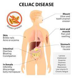 FAQ Autoimmune Diseases: Celiac Disease Malabsorption Food Allergies FREE Initial Consultation (~ 30mins) #getnaturopathic