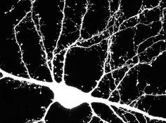 Study identifies autism gene which regulates dendrite development to slow down brain communication.  #autism #Autism #autismspectrumdisorder #biology #brain #Causesofautism #dendriticspine #disorder #Facebook #Health_Medical_Pharma #Heritabilityofautism #McMasterUniversity #Nervoussystem #neurodevelopmentaldisorders #neurons #neuroscience #Neuroscience #Psychiatricdiagnosis #spineAutismspectrumdisorder #Synapse #Twitter