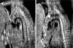 Ultrasound Humor, Ultrasound Sonography, Pregnancy Gender Reveal, Pregnancy Photos, Nuclear Medicine, Heart Attack Symptoms, Magnetic Resonance Imaging, Medical Imaging, Workout Planner