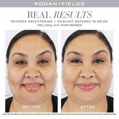 Wow, just look at Mellissa's results from using Rodan + Fields Reverse Brightening regimen (bundle of products) and Rodan + Fields Radiant Defense in shade Beige! She looks so much happier with her skin in the after photo! Derma Cosmetics, Moisturizer With Spf, Homemade Skin Care, Skin Firming, Rodan And Fields, Skin Care Regimen, Good Skin, Sensitive Skin, Beige