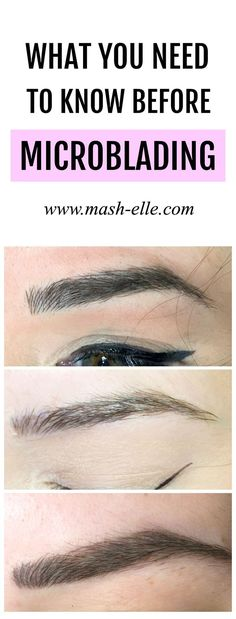 Make sure you read this BEFORE getting microblading done. Beauty blogger Michelle Kehoe of Mash Elle shares 10 things she wish she knew before microblading. All your questions surrounding microblading will be answered including pain level, how long it lasts, the healing process, who should micro blade your eyebrows and more!