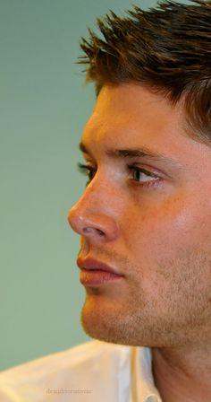 #Jensen #freckles #datface