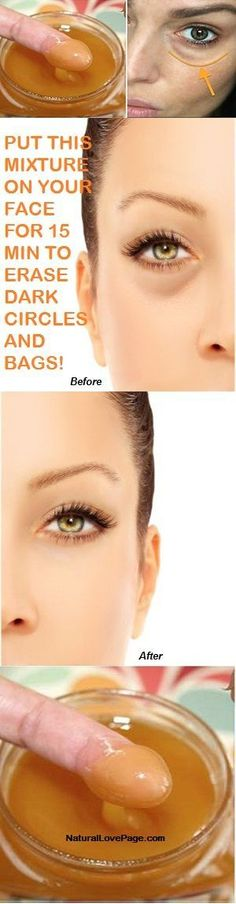 PUT THIS MIXTURE ON YOUR FACE FOR 15 MIN TO ERASE DARK CIRCLES AND BAGS! –