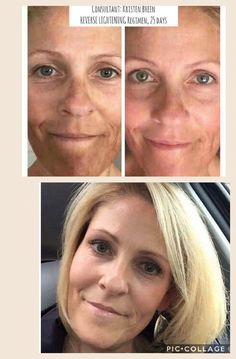 Melasma doesn't have to be permanent!   Get rid of it with our REVERSE regimen ~ guaranteed or your money back!!! 💛💛💛  #REVERSEit #LifeChangingSkincare #RodanandFields