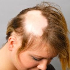Provillus hair loss treatment for thinning hair or hair loss. Provillus is proven to cure alopecia areata also male and female pattern baldness. http://www.provillushairlosscures.com