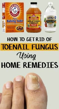 How to Get Rid of Toenail Fungus – 9 Home Remedies Included | DIY Health Tips