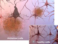The aging brain naturally develops beta-amyloid plaques. Beta-amyloid plaques block neural pathways causing memory loss and are the hallmark of Alzheimer's disease. A University of California Berkeley study, focused on people who though having beta-amyloid plaques still retained their cognitive function. They found that these subjects developed a so-called neural workaround, which compensated for the destruction caused by beta-amyloid thereby preserving cognitive ability. #AlzStudy