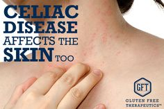 Celiac disease and can cause other effects that can be difficult and painful. Symptoms of celiac disease can include dermatitis herpetiformis. Learn more.
