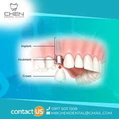 Don't wait for pain, save your Good teeth from turning bad. At Mbchen Dental care , our dentists take digital scans of your teeth to create customized crowns that fit you perfectly. Give us a call at 63 9175031508 Dental Hygienist, Dental Implants, Dental Care, Chen, Dental Crowns, Perfect Smile, Dental Services, Root Canal, Teeth Care