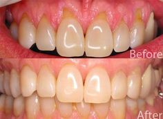 How- To Get Rid of Gum Disease and Promote Gum Growth For Receding Gums.