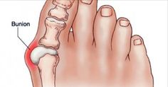 """Bunions are actually salt deposits. Their formation is triggered by influenza, tonsillitis, gout, poor metabolism, improper nutrition, rheumatic infection and wearing uncomfortable shoes. Bunions are a real """"nightmare"""" – it is hard to find a fitting footwear, they are irritating, and give a quite unattractive appearance of the foot."""